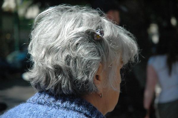 白髪女性の頭部