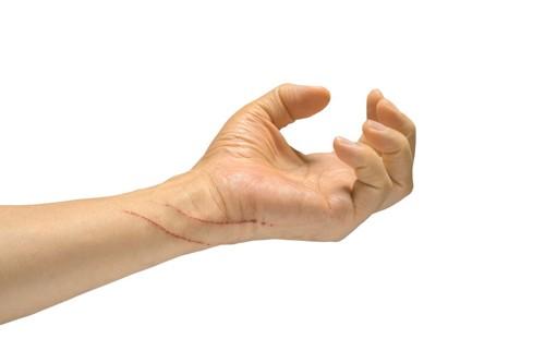 ひっかき傷のある手
