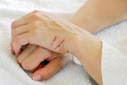 重ねた手と引っ掻き傷