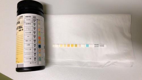 尿検査試験紙