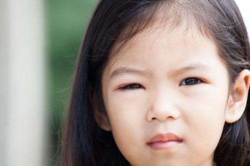 アレルギーで目が腫れている女の子