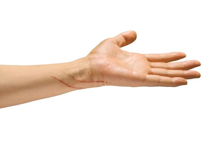 猫にひっかかれた傷がある人の手
