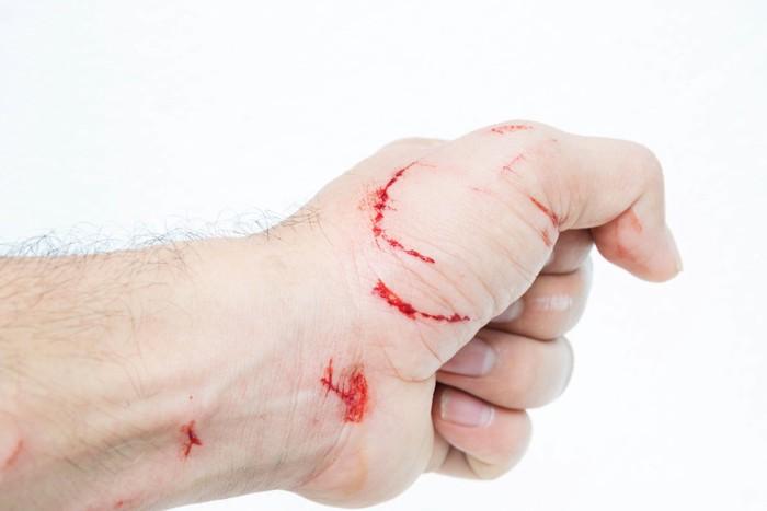 猫に噛まれたような傷だらけの手