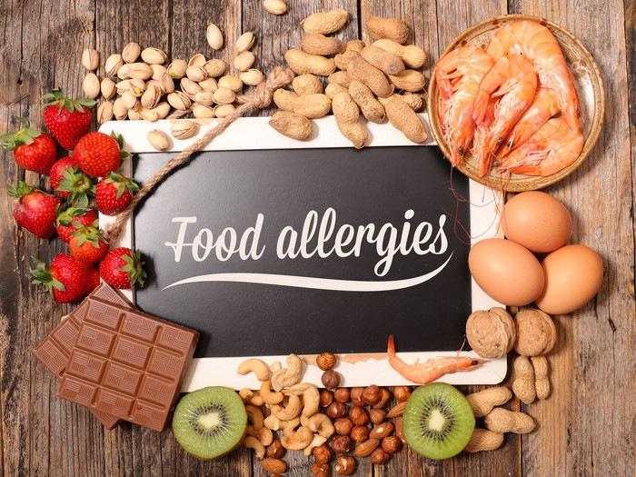 114999741 食物アレルギー