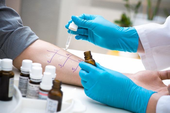 アレルギー検査の原因