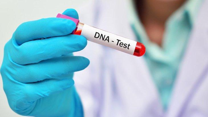 犬の遺伝子疾患セロイドリポフスチン症について
