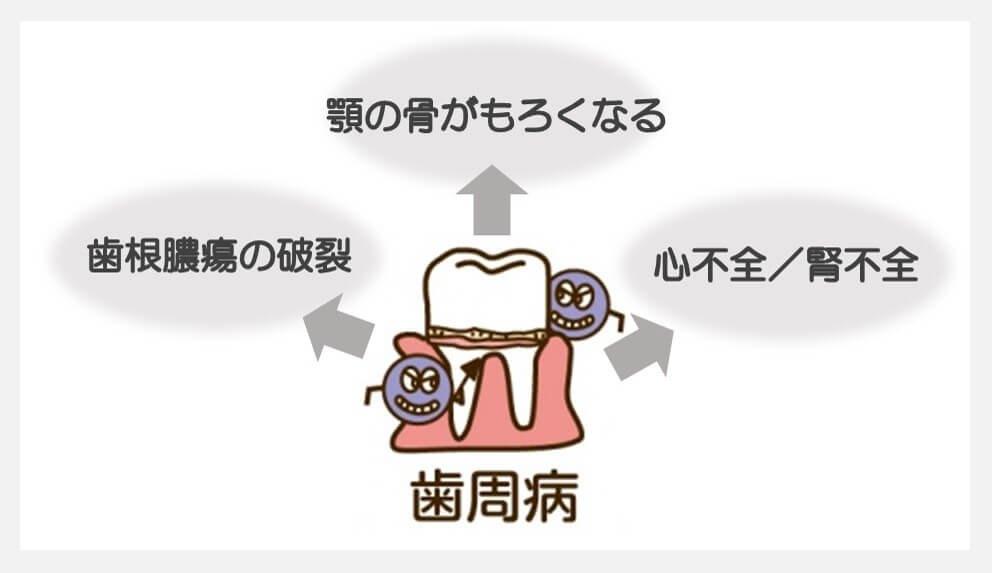 歯周病イラスト