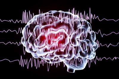 脳のレントゲン画像