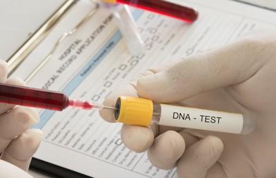 遺伝子検査の試験管
