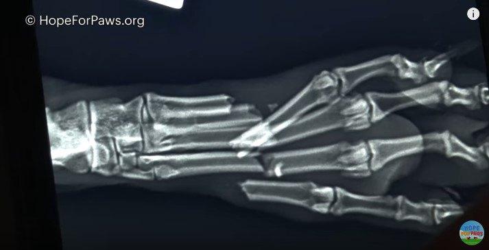 X線写真1