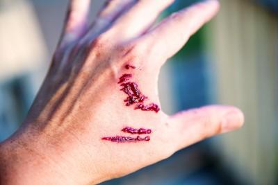 犬に噛まれた人の手