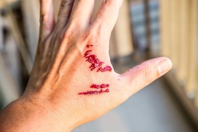 噛まれて血が出ている手