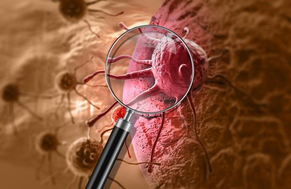 癌細胞イメージ