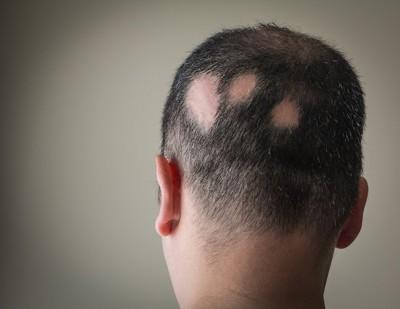 アロペシアの男性の後頭部