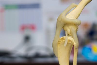 膝の骨の模型