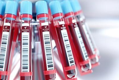 試験管の血液サンプル