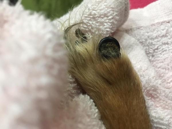アンモナイト状態の爪